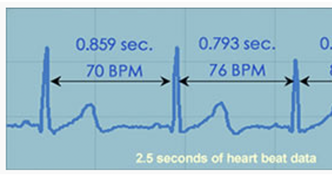 Heart Rate VARIABILITY - Intro & Discussion
